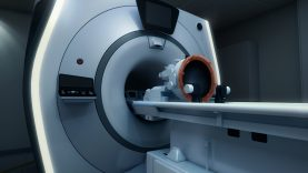 INSIGHTEC® receives fda approval for exablate neuro compatibility with siemens healthineers MRI's